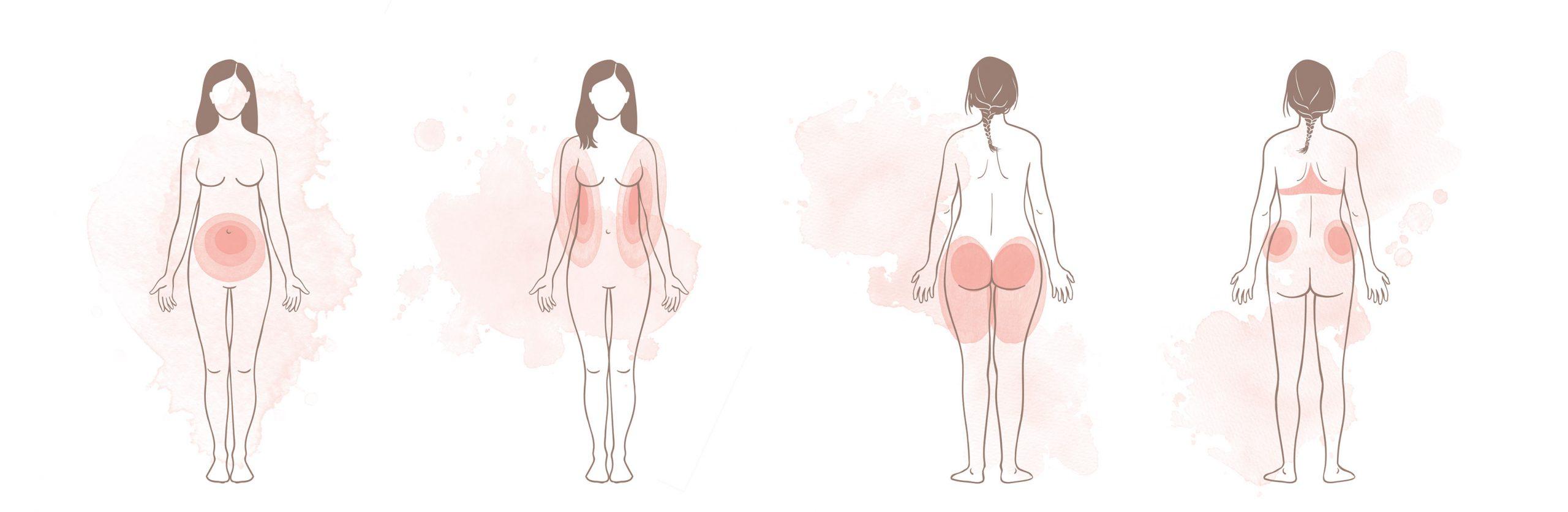 """Illustrationen Hormontypen """"Die Hormon-Balance-Diät"""""""